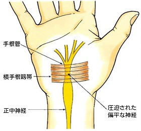 手根管症候群