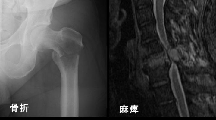 転移性骨腫瘍(がんの骨転移)