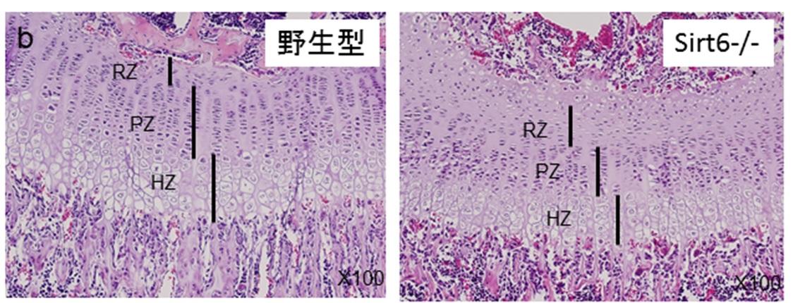 脛骨成長板軟骨 Sirt6-/-では増殖層と肥大軟骨層が短縮し静止層が拡大する。