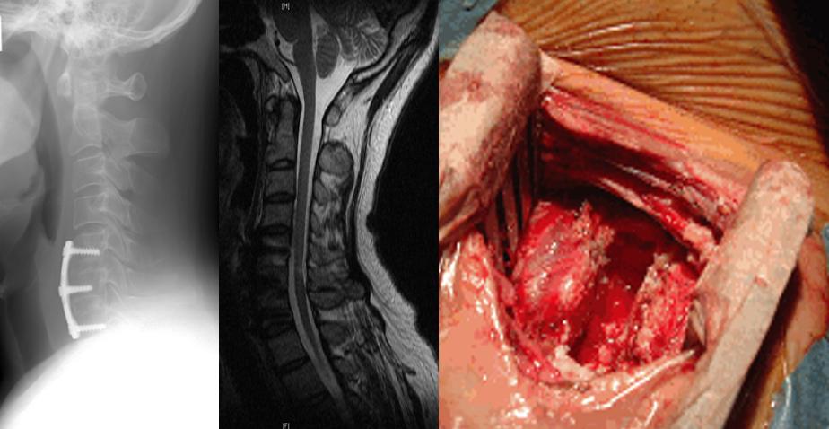 腰椎変性疾患(腰部脊柱管狭窄症、すべり症など)