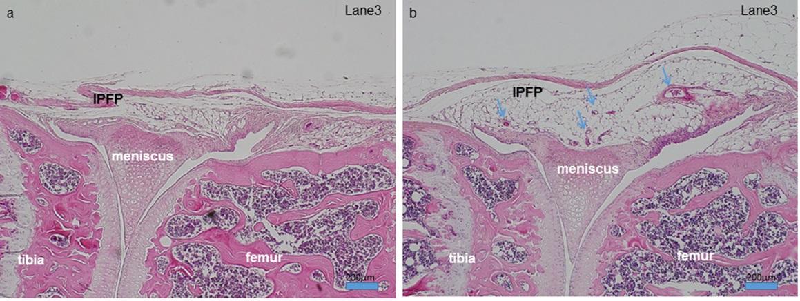 高脂肪食開始後12週(右)では通常食(左)と比較し、膝蓋下脂肪体(IPFP)が肥大し、血管増生も認められる。