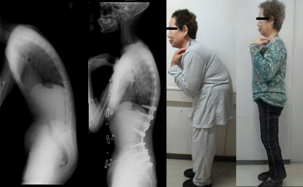 成人脊柱変形 (脊柱後弯症、後側弯症など)