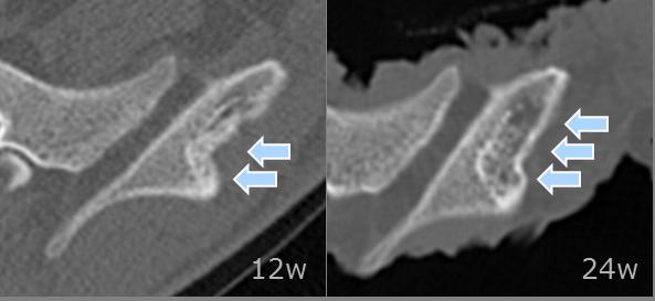 図2: リフィットによる骨再生