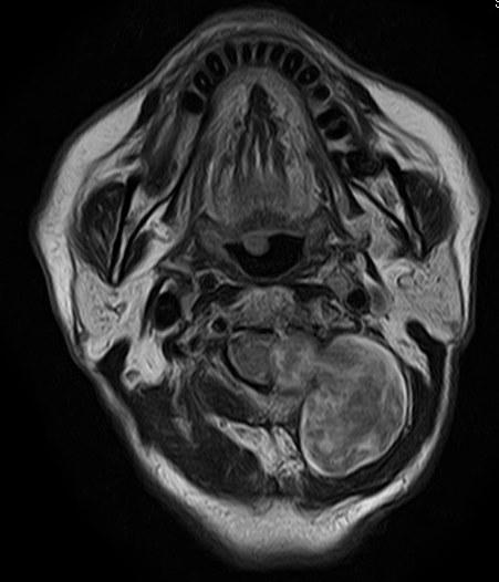 上位頚椎砂時計腫(神経鞘腫)