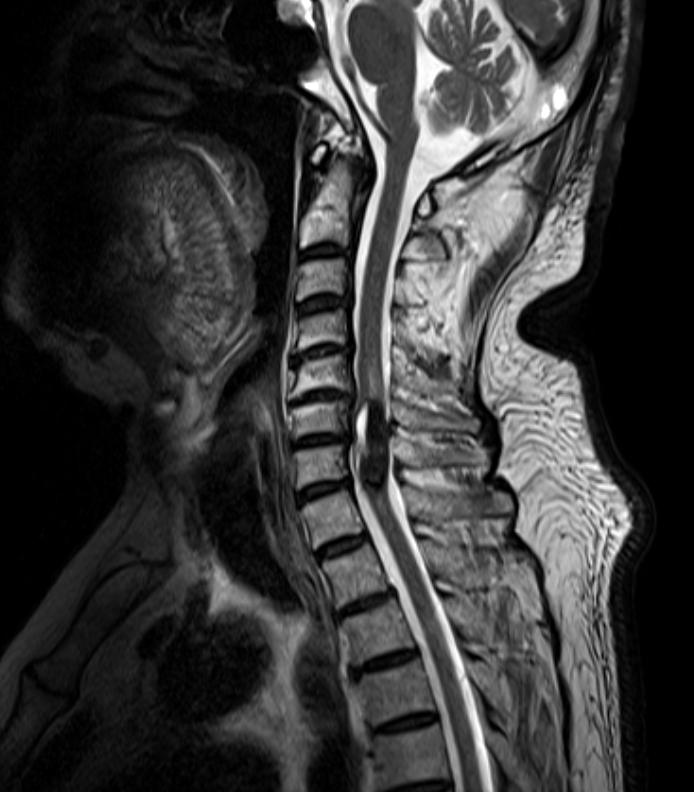 頚椎変性疾患
