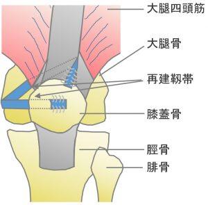 膝蓋骨脱臼(習慣性・反復性膝蓋骨脱臼)
