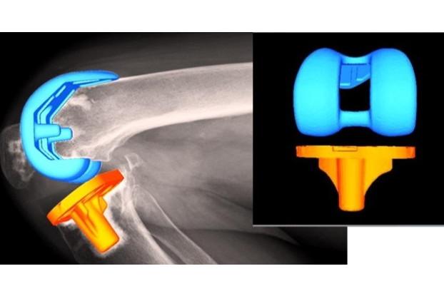 基礎研究:膝関節の疼痛(運動器外科学)
